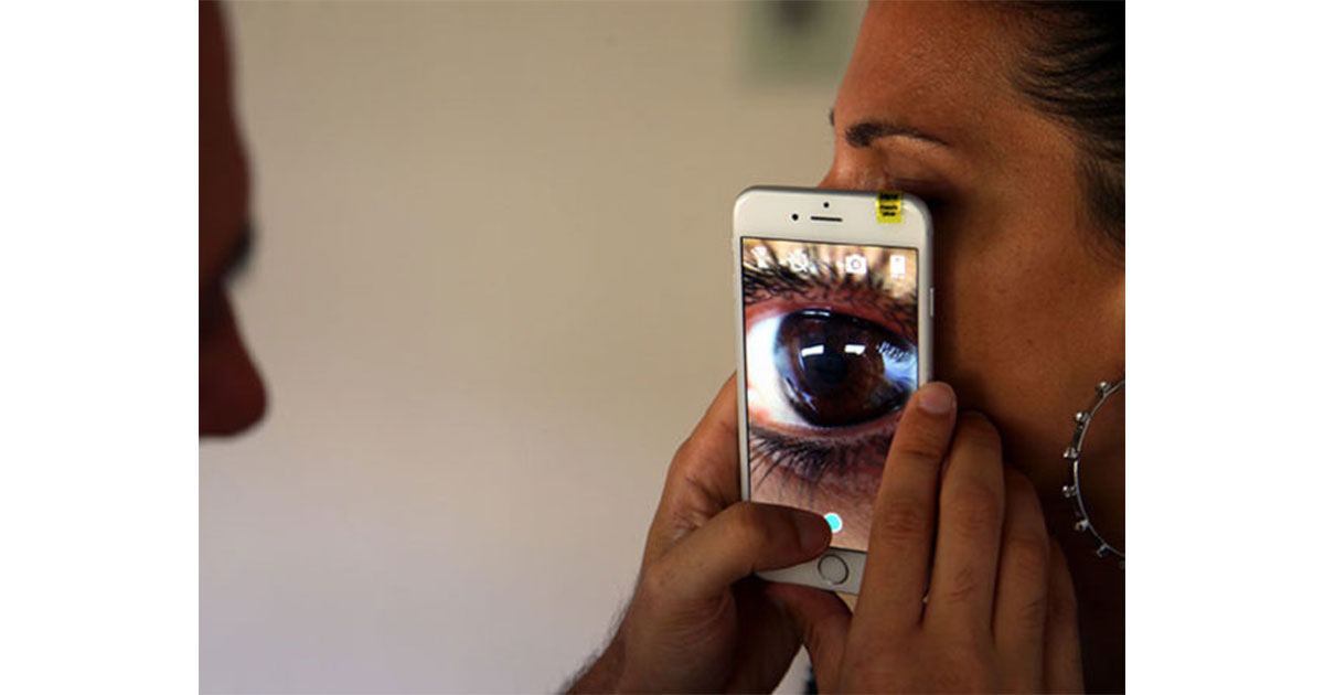 Blips Smartphone Lens Kits: $24.99