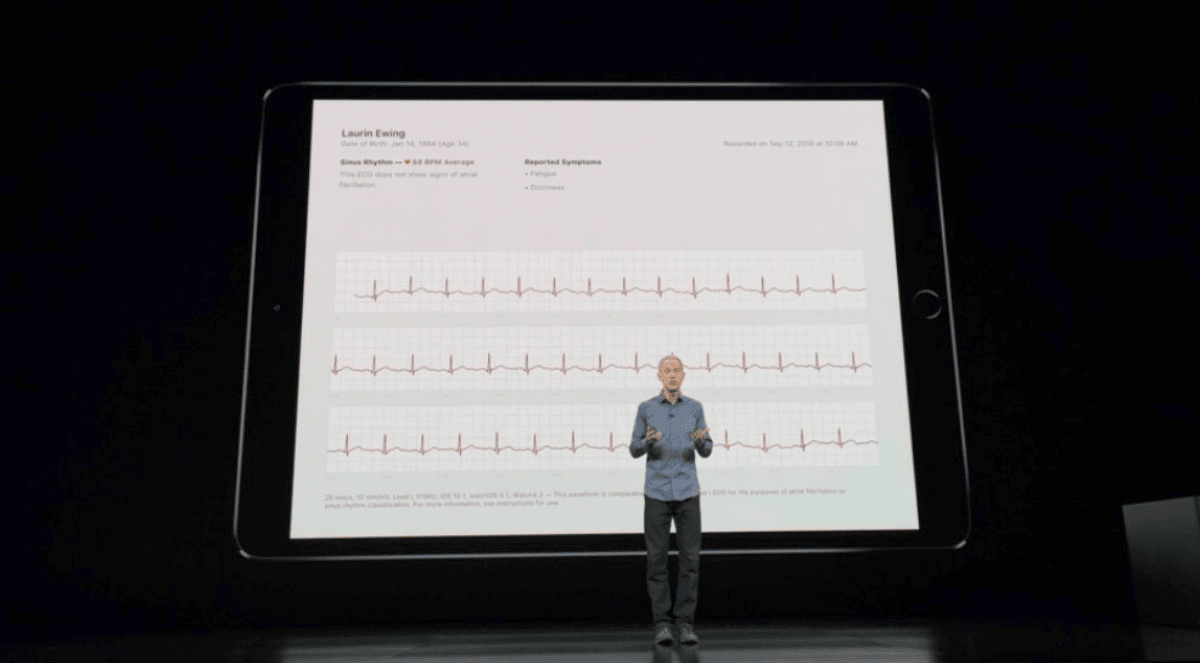 Jeff Williams showing Apple Watch Series 4 electrocardiogram.