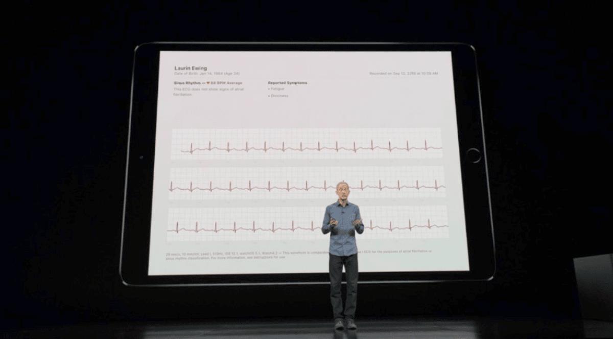 Jeff Williams showing Apple Watch Series 4 electrocardiogram.