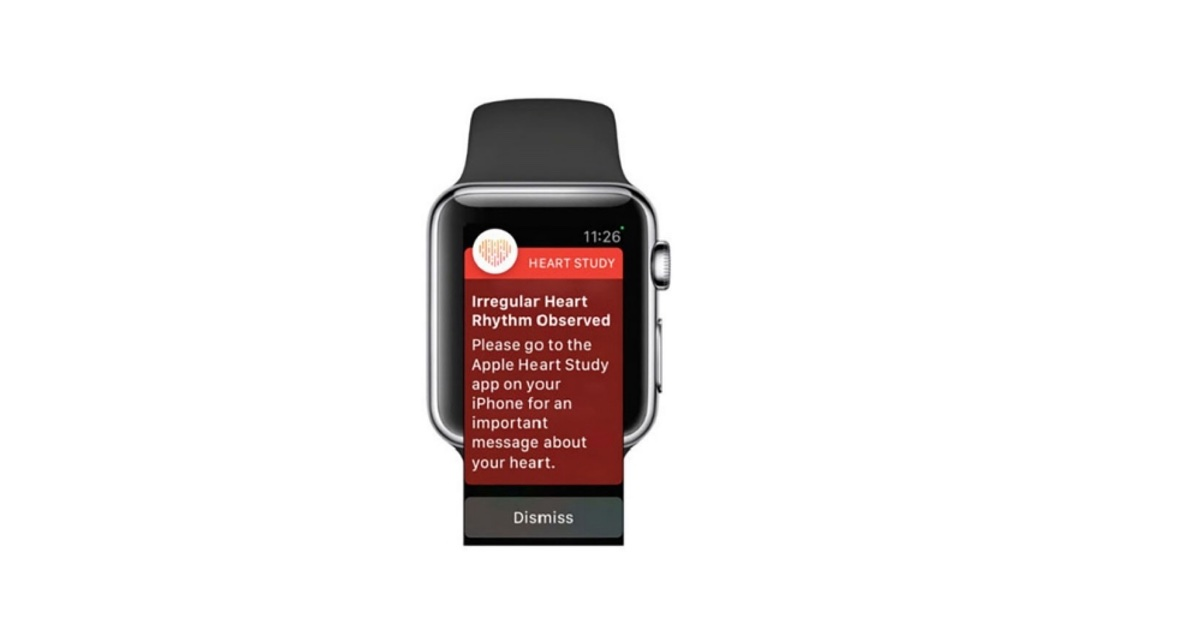 A notification from the Apple Heart Study