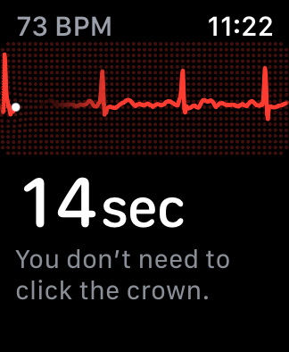 Screenshot of the ECG app