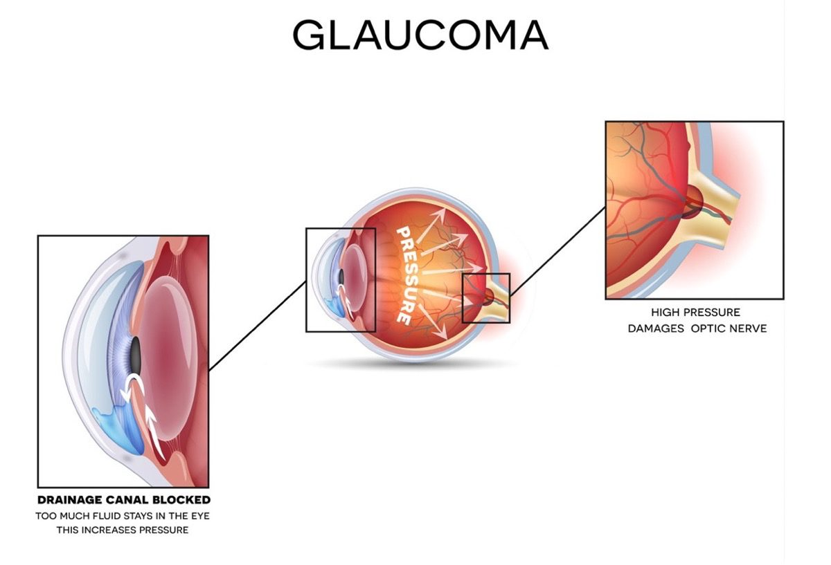 Image of glaucoma